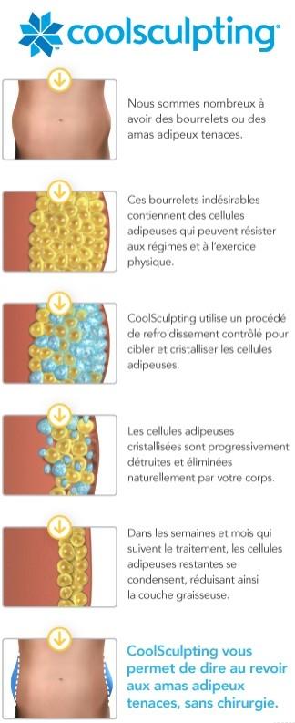 Le principe de fonctionnement du Coolsculpting