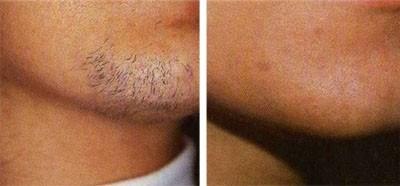 Epilation laser de la barbe