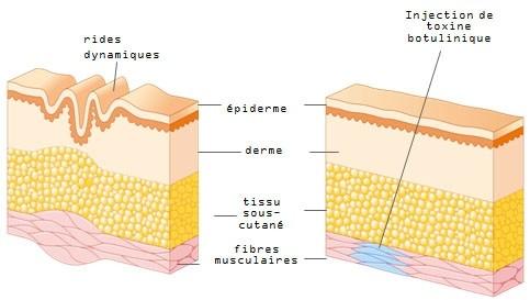 Schéma de l'injection du Botox