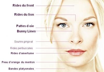 Les rides traitées par le Botox