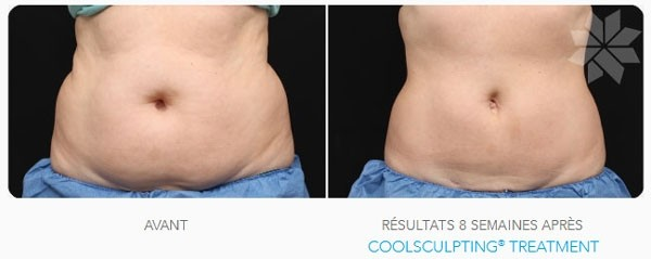 Traitement par Coolsculpting